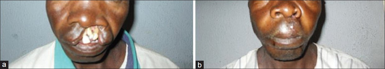 Figure 1: (a) Preoperative unilateral cleft lip. (b) Post operative unilateral cleft lip