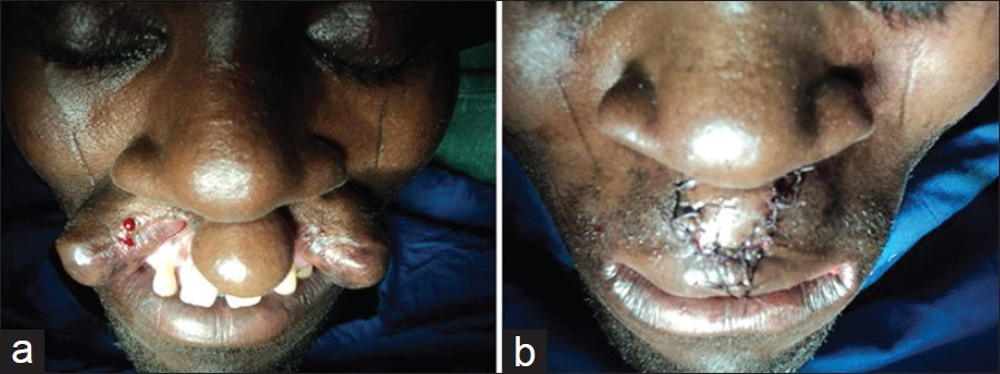 Figure 2: (a) Pre operative bilateral cleft of the upper lip. (b) Post operative bilateral cleft of the upper lip