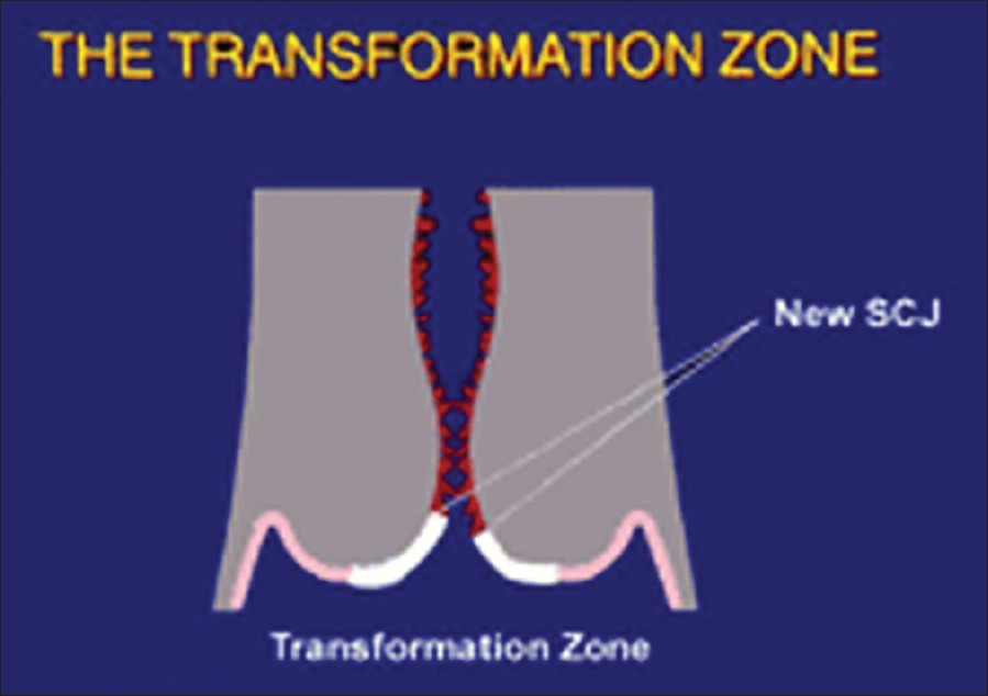 Figure 1: Transformation zone on cervix