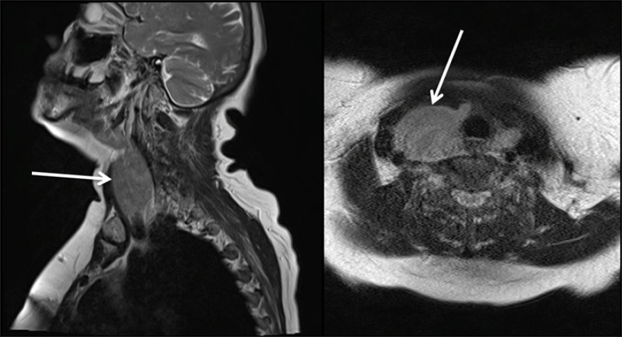 Figure 1: An MR imaging of the neck
