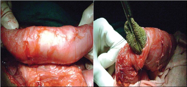 Figure 2: Intraoperative photograph showing retrieval of surgical sponge from the lumen of bowel loop