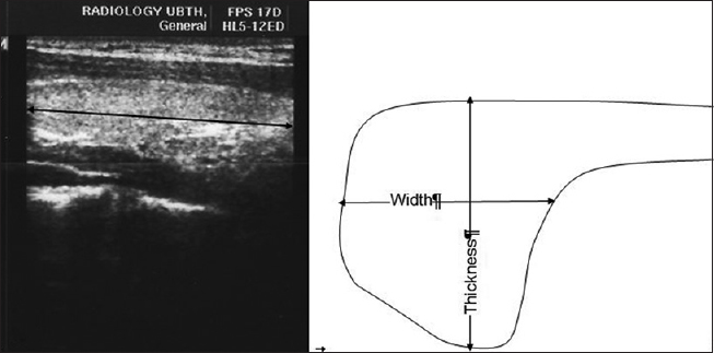 Figure 1: Ultrasound image (and line diagram) of the right lobe of the thyroid gland on transverse scan showing the measurement planes