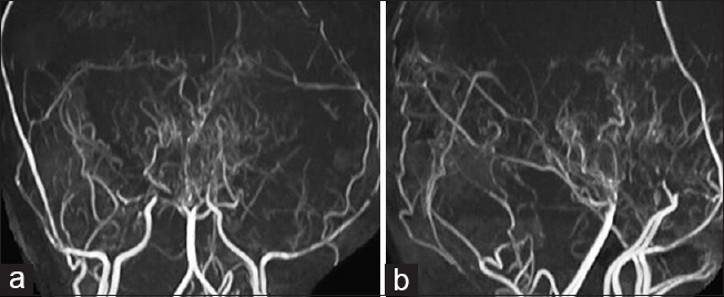 "Figure 2: (a and b) Occlusion of total occlusion of bilateral supraclinoid internal carotid artery along with ""puff of smoke"" appearance"