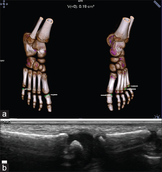 Figure 1: (a) Dual-energy computed tomography with three-dimensional reconstruction of the bilateral feet of the daughter showing small green color mapping areas (arrows) in the bilateral first metatarsophalangeal joints, right fifth metatarsophalangeal joint, and left fourth and fifth metatarsophalangeal joints suggestive of urate crystals. Approximate volume: 0.19 cm<sup>3</sup>. (b) Ultrasound examination of the right first metatarsophalangeal joint showing normal joint space with no evidence of any effusion, synovitis, and urate crystals