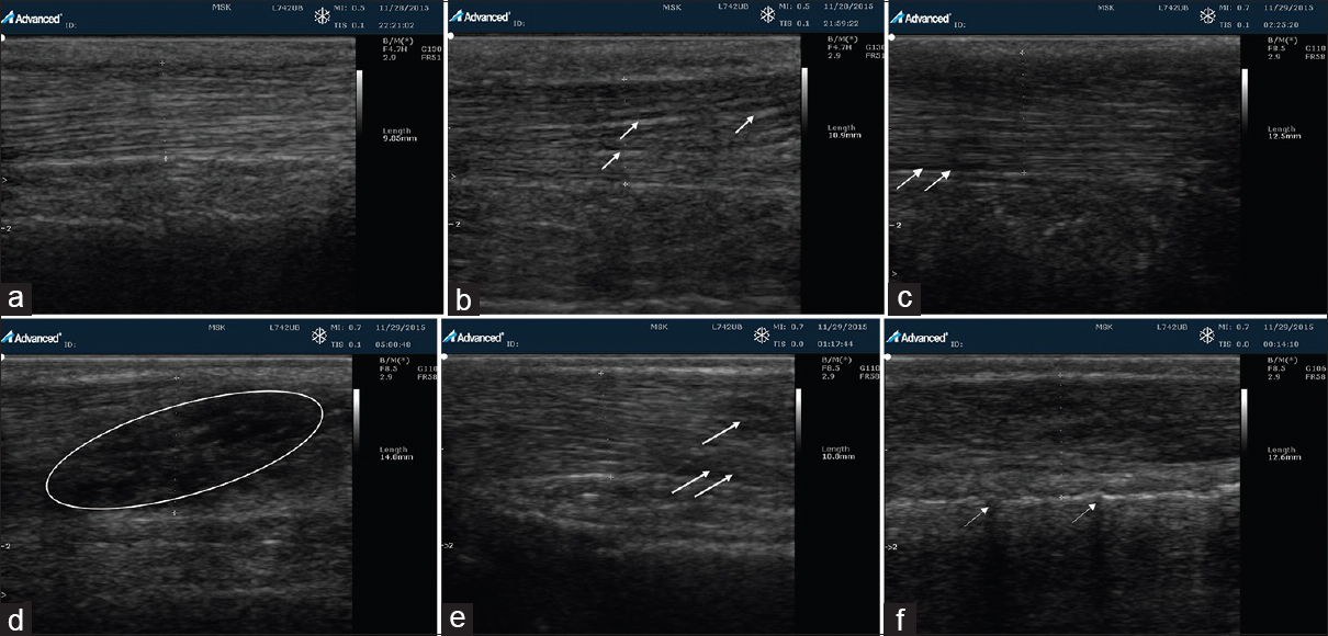 Figure 1: Classical sonographic images (a) normal tendon (b) Thickening of the connective tissue peritendineum in a participant with normal blood glucose and body mass index but previous history of high blood pressure. (c) Mild tenosynovitis in a participant with noncontributory factor (d) cystic degeneration or intrasubstance partial tear in an overweight individual (e) tenosynovitis in a participant with noncontributory factor (f) microcalcifications as represented by acoustic shadows in a participant with noncontributory factor