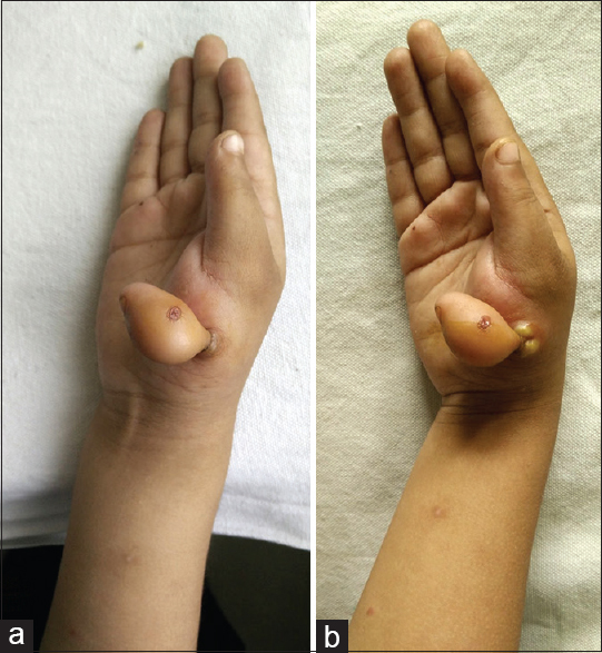 Figure 1: The image of affected extra digit (preaxial polydactyly) with inflammation. The presence of typical varicella rash over the affected digit (a) and the suppuration near base of digit the following day (b)