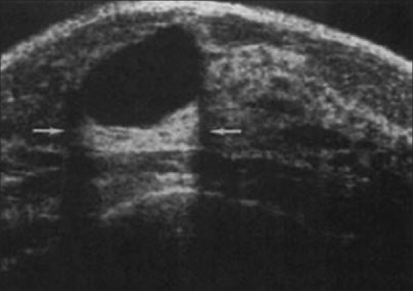 Figure 13: On ultrasound, it is a clean, anechoic, thin-walled cyst with distal acoustic enhancement confirming it to be a simple benign cyst