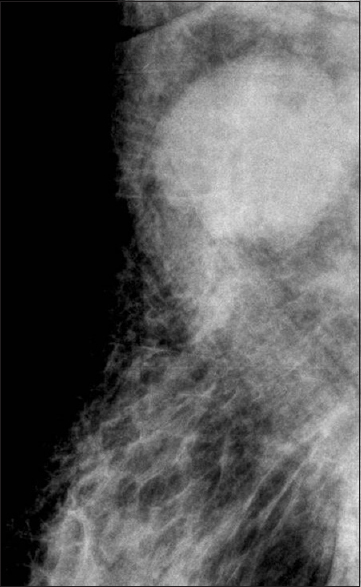 Figure 16: Repeat mammogram focusing the axilla shows enlarged nodes indicating metastases
