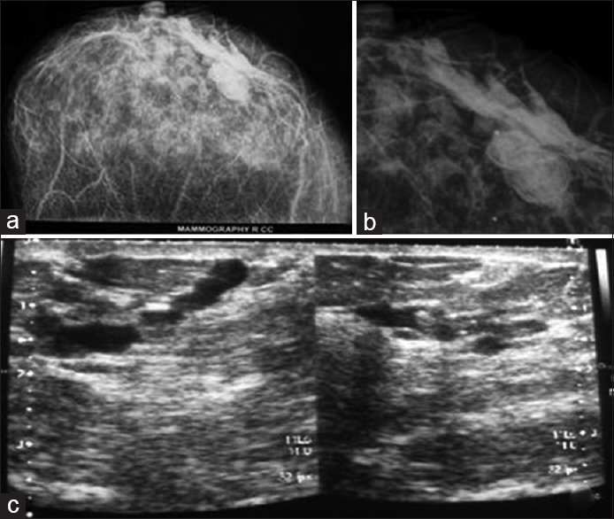 Role of high resolution ultrasound complementary to digital