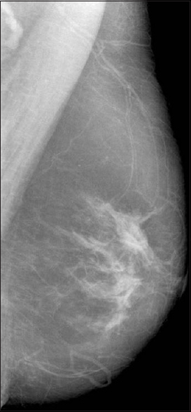 Figure 4: Digital mammography of left breast shows few irregular periareolar small high density areas. No microcalcifications are seen. A lymph node with fatty hilum is seen in axilla