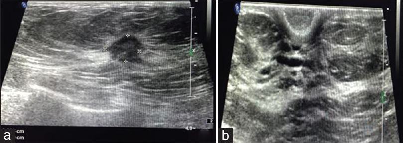 Figure 5: High-resolution ultrasound shows a high-density angulated lesion measuring 1.1 cm × 0.8 cm with peripheral spiculations and increased echogenicity in the upper medial quadrant of left breast (a). Few retroareolar ducts are just prominent (b) diagnosis confirmed as lobular carcinoma