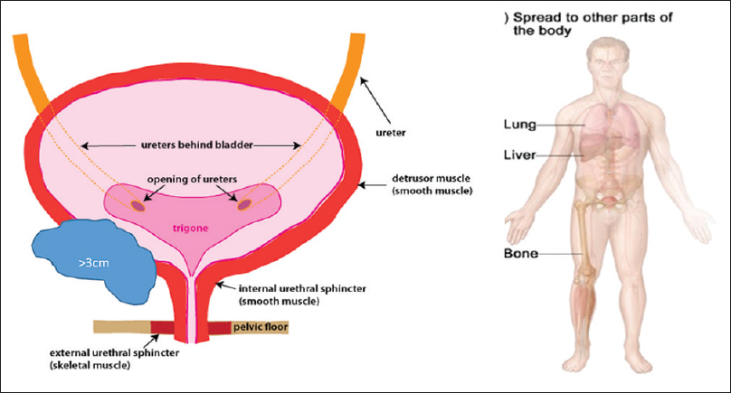 Figure 5: Systemic disease