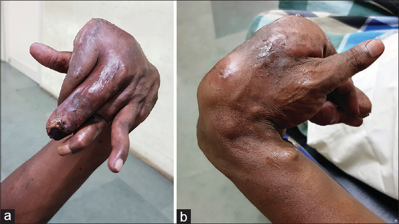 Figure 1: (a) The multinodular swelling in the left hand of the patient with flexor contracture and skin changes. (b) The multinodular swelling in the left hand of the patient with flexor contracture and skin changes