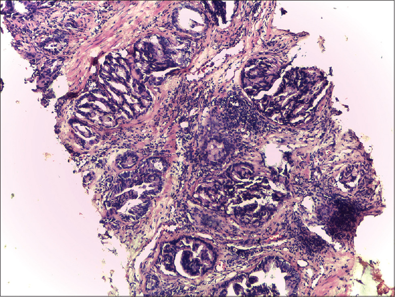 Figure 1: Prostatic core showing infiltrating malignant glands