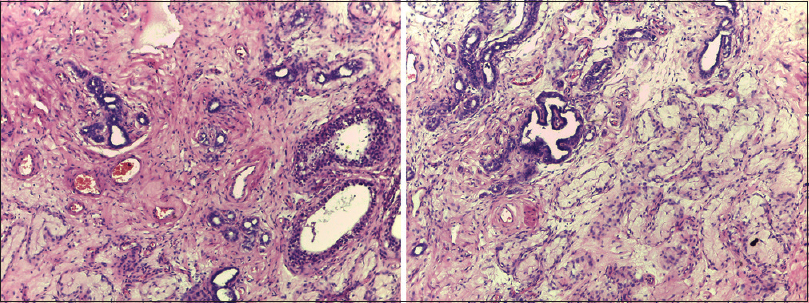 Figure 2: Photomicrographs showing metastatic testicular carcinoma. Note the infiltrating glands and the atrophied seminiferous tubules