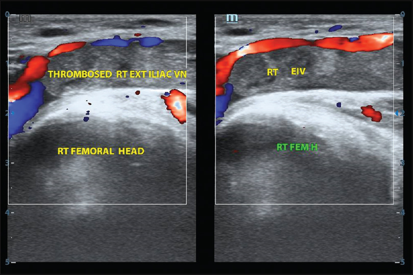 Figure 4: Gray scale and Color Doppler modes longitudinal scan showing echogenic (chronic) thrombus in the right external iliac vein with the loss of compressibility and early canalization