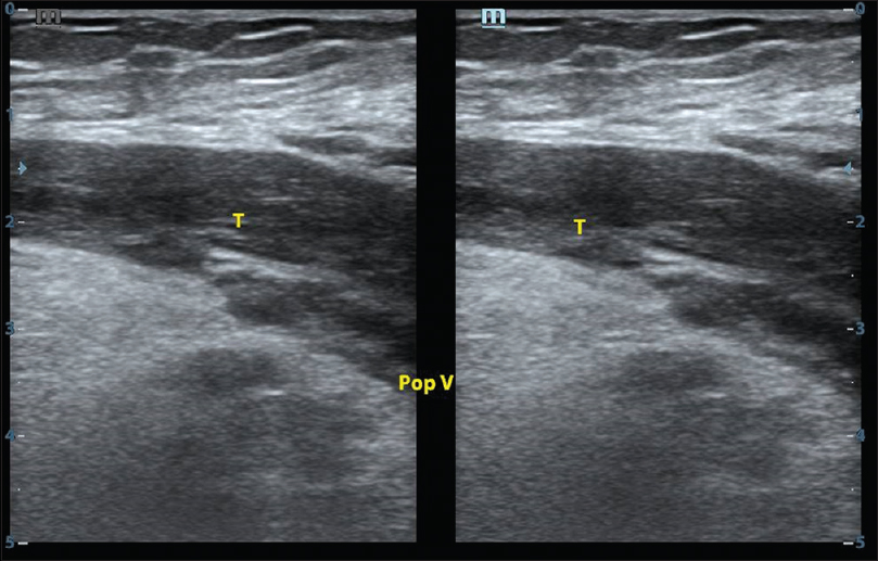 Figure 7: Gray scale (B-mode) longitudinal scan showing echogenic (chronic) thrombus in the left popliteal vein with loss of compressibility