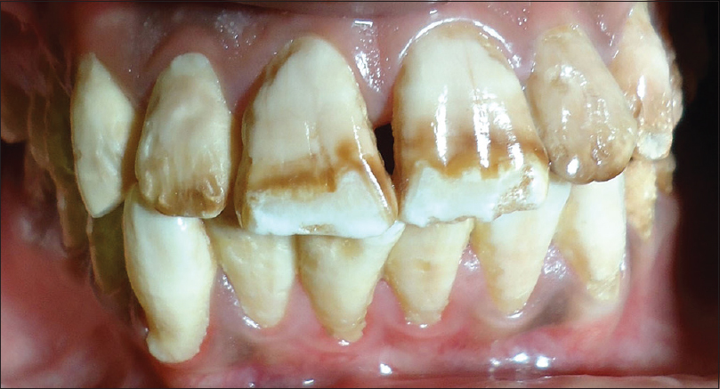 Figure 1: Preoperative photograph showing severe fluorosis