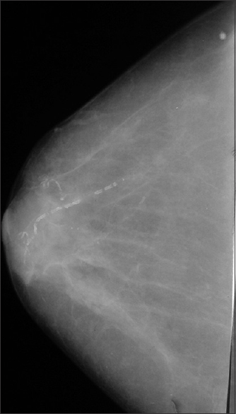 Figure 3: Medio-lateral view of the breast showing benign vascular calcification (breast imaging, reporting and data system 2)